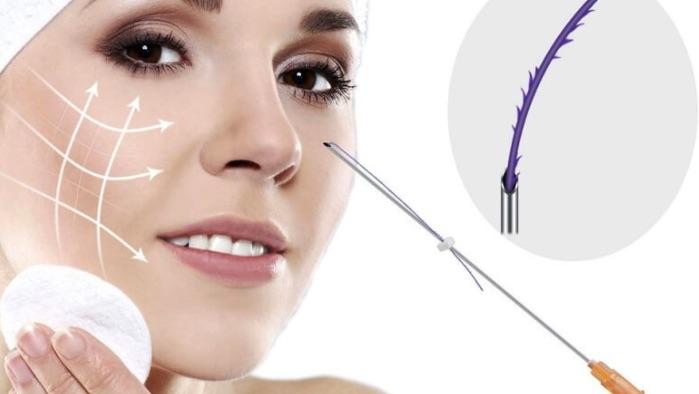 Nâng cơ mặt không xâm lấn bằng chỉ nâng cơ phẫu thuật